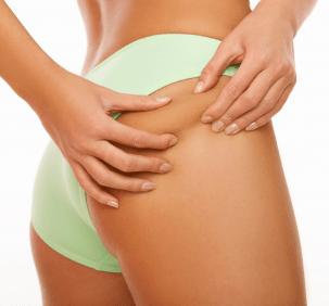 Cellulite: i nuovi metodi non invasivi