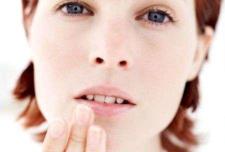 Labbra, come coprire l'herpes