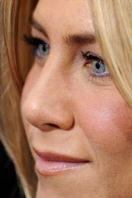 Jennifer Aniston viso