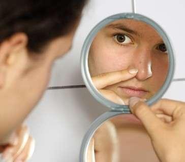 Punti neri su viso e corpo: i rimedi definitivi