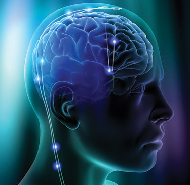 Encefalite: sintomi, cause e trattamenti