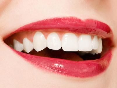Denti bianchi, le faccette in porcellana come soluzione difinitiva