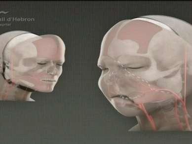 Trapianto totale di viso: è stato eseguito in Francia