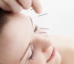 Botox: l'Agopuntura facciale come alternativa