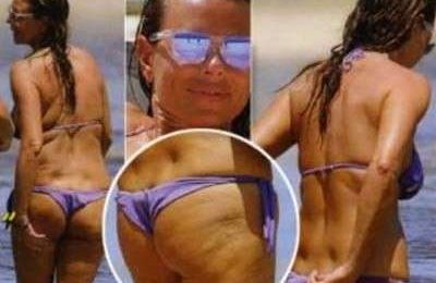Cellulite: anche le star piangono!
