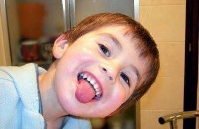 Bambini: la lingua a chiazze non deve preoccupare