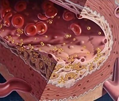 Arteriosclerosi: arriva il vaccino
