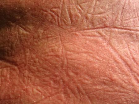 Lo stress causa patologie della pelle: ecco quali