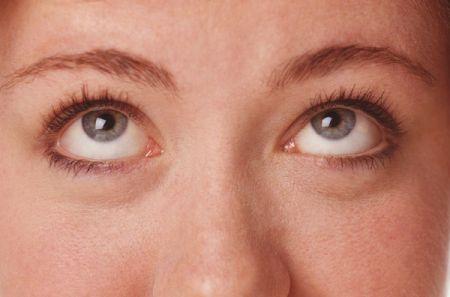 Viso gonfio e occhiaie? 5 regole di prevenzione