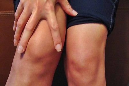 Condropatia rotulea: cos'è e come si cura