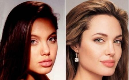 Angelina jolie prima e dopo