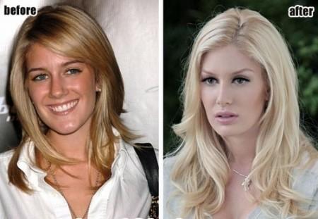 Heidi Montag prima e dopo