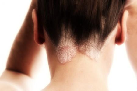Malattie della pelle: la psoriasi fa perdere il lavoro