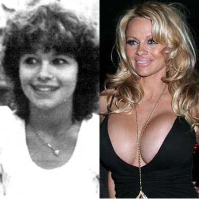 Pamela Anderson prima e dopo la chirurgia