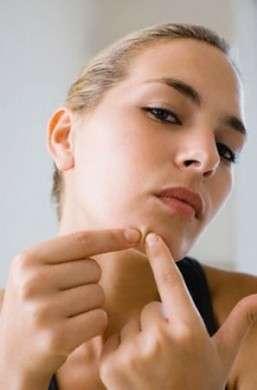 Come eliminare le cicatrici lasciate dall'acne