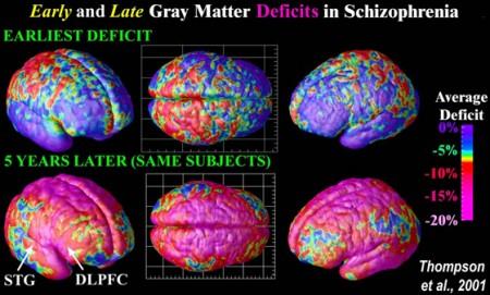 Cervello: schizofrenia ricreata in laboratorio