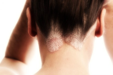 Malattie della pelle, il punto su cure e tecnologie