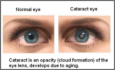 Occhi: per prevenire la cataratta più verdura e meno carne nella dieta