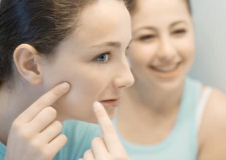 Acne, come curare le pelli giovani