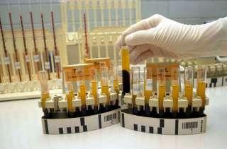 Per diagnosticare i tumori potrebbe bastare un esame delle urine