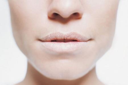 Labbra secche e screpolate: cause e rimedi naturali