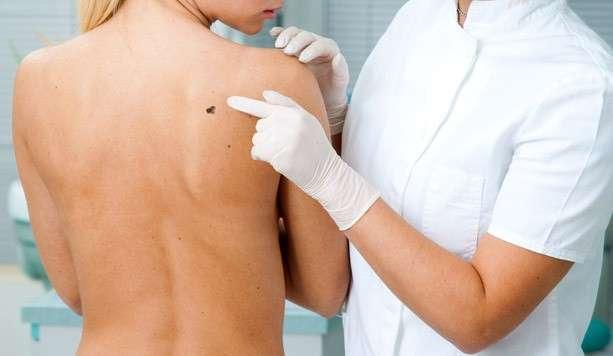 I sintomi del melanoma e le foto per riconoscerlo