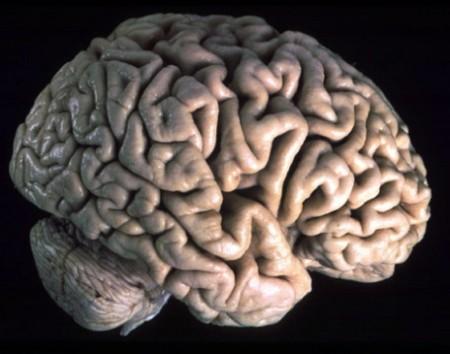 tumore al cervello glioma