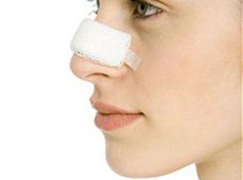 Sinusite ricorrente ed episodi di epistassi? Potrebbe dipendere dal setto nasale deviato