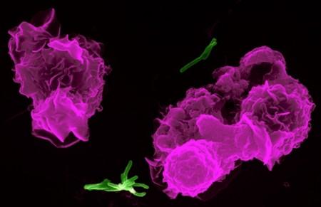 Tbc a Roma, doppio contagio madre e figlio