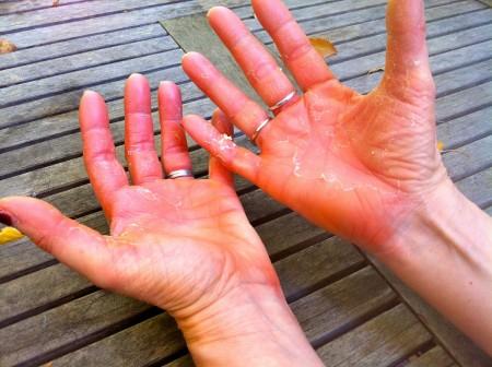 Perché esiste il disturbo delle mani rosse e quali sono i rimedi