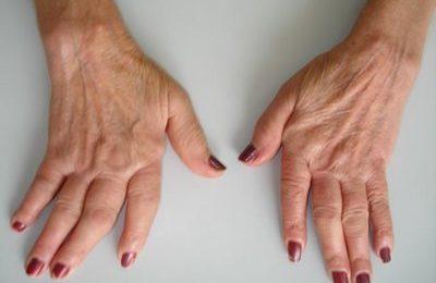 L'artrite reumatoide colpisce anche le giovani donne