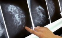 Quali terapie per i noduli al seno?