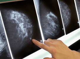 terapie noduli seno