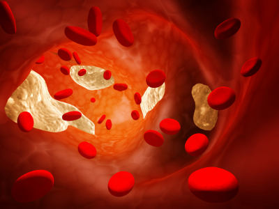 Il colesterolo? Aumenta nel mese di Gennaio