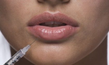 Stop Botox su labbra e occhi, lo impone l'AIFA ma i chirurghi non ci stanno