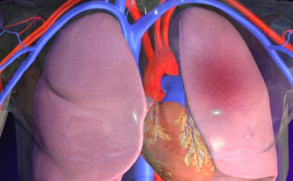 Embolia polmonare, sintomi da riconoscere e primo intervento