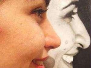 Chirurgia estetica: la rinoplastica per correggere il naso