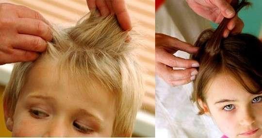Pidocchi nei bambini: sintomi da riconoscere e rimedi da adottare [FOTO]