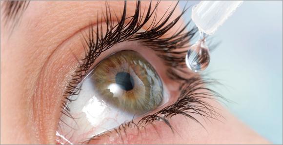 Sindrome dell'occhio secco da lenti a contatto, benefici dai colliri