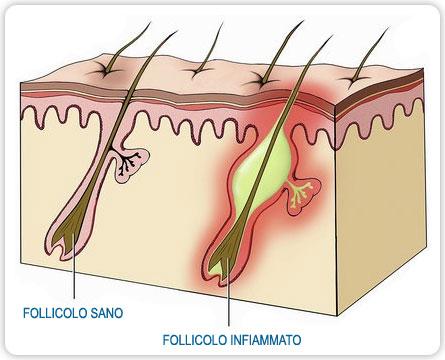 follicolite depilazione