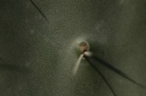 follicolite infezione bulbo pilifero
