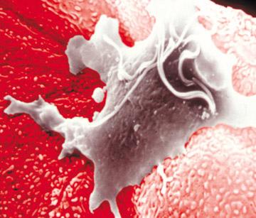 infezione da trichomonas al microscopio