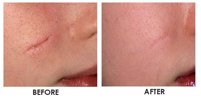 Cicatrici, come eliminarle con la chirurgia estetica