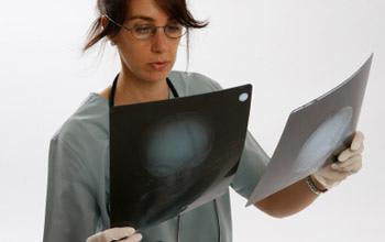 Sconfigge tumore al colon con dieta fai-da-te: è possibile?