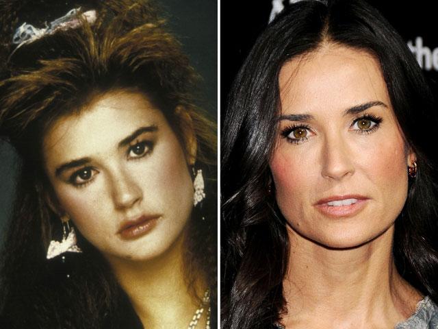 Demi Moore prima e dopo