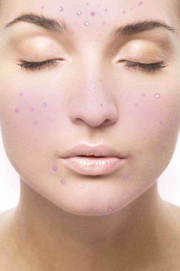Cicatrici dell'acne: come si eliminano? [FOTO]