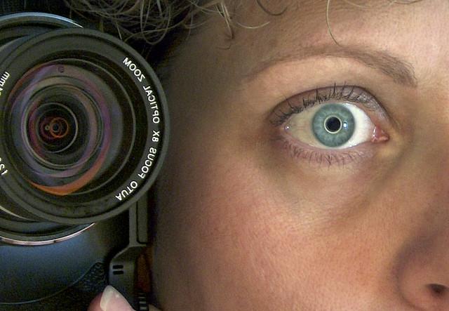 Occhiaie: cause e rimedi naturali