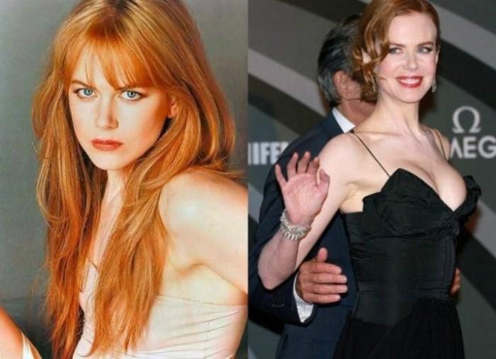 Nicole Kidman rifatta