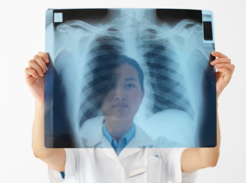 Tumore al polmone: sintomi, stadi e diagnosi