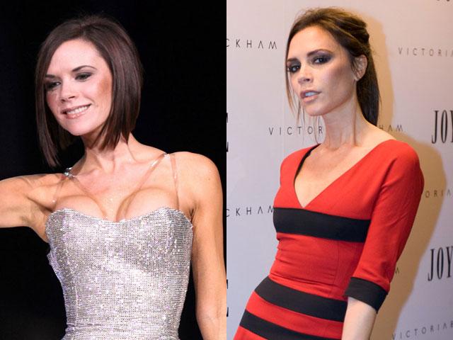 Victoria Beckham seno rifatto male